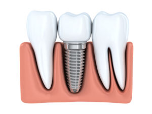 Discover if dental implants in Larchmont Village are the right option for you.